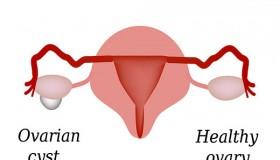 کیست تخمدان ، علائم و رفع مشکلات کیست تخمدان
