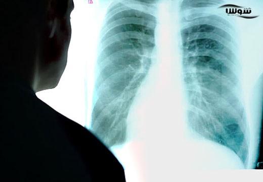پیش بینی بیماری ها با اسکن قفسه سینه
