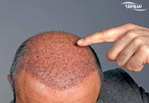 کاشت مو با سلولهای بنیادی