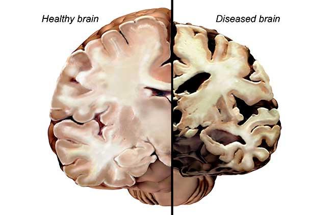 باکتری در مغز مجرم احتمالی بیماری آلزایمر