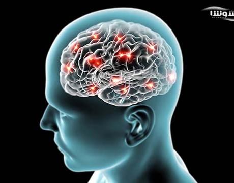 باکتری در مغز افراد آلزایمری بیشتر وجود دارد