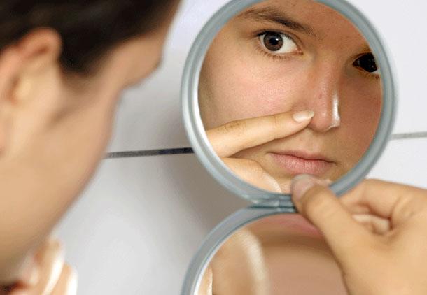 درمان جوش صورت بعد از عمل بینی