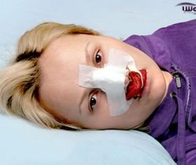 جلوگیری از خونریزی بعد از عمل بینی
