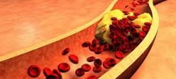 20 تا از بهترین مواد غذایی برای پاکسازی رگ های قلب