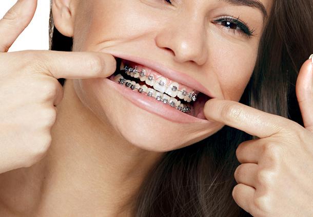 تصحیح نامرتبی دندانها