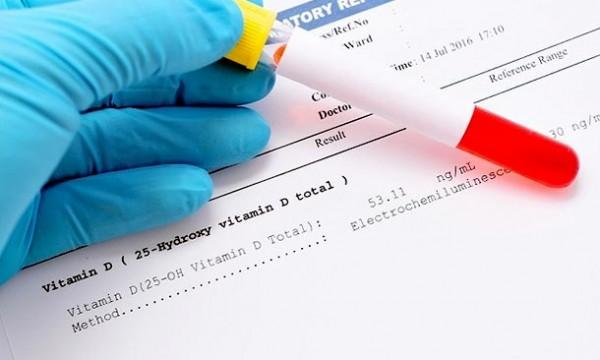 پیش بینی ابتلا به ام اس با میزان ویتامین D خون