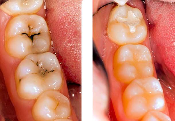 پوسیدگی دندان علت لکه قهوه ای روی دندان