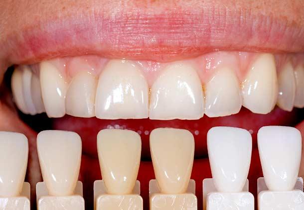 روکش یا کامپوزیت دندان