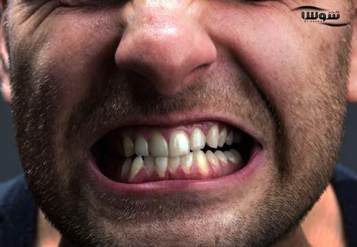 درمان دندان قروچه با طب سنتی