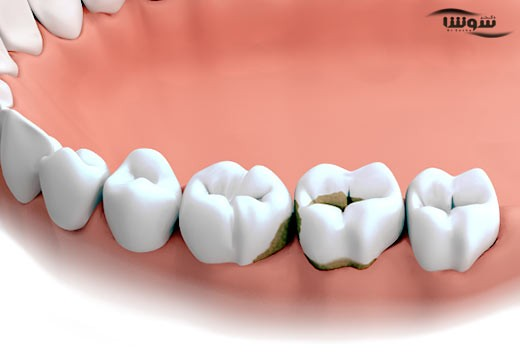 درمان لکه های قهوه ای روی دندان