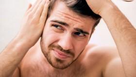 درمان خارش سر با سرکه