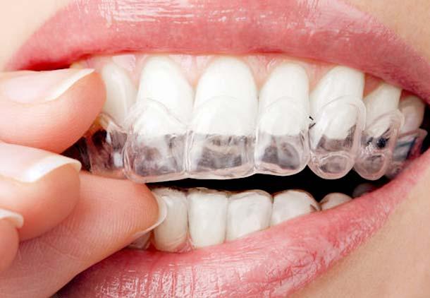 استفاده از قالب سفید کننده های دندان