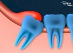 عفونت دندان عقل نیمه نهفته