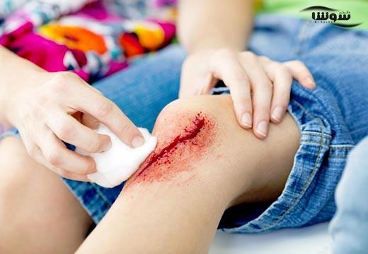 اختراع باند الکترونیکی برای درمان زخم های مزمن