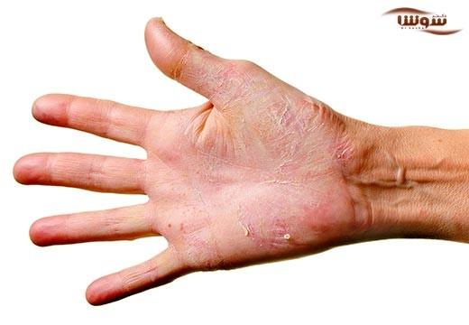 درماتیت  (Dermatitis)