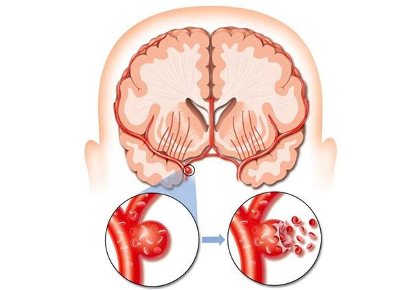 درمان بعد از سکته مغزی : چگونه مغز بعد از سکته مغزی درمان میشود؟