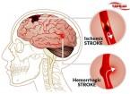 درمان بعد از سکته مغزی