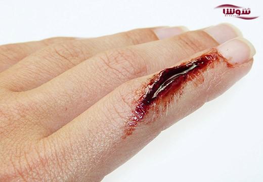 زخمهای بدن در شب زودتر خوب میشوند یا در روز؟