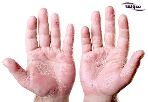 خشکی پوست دست نشانه چیست؟