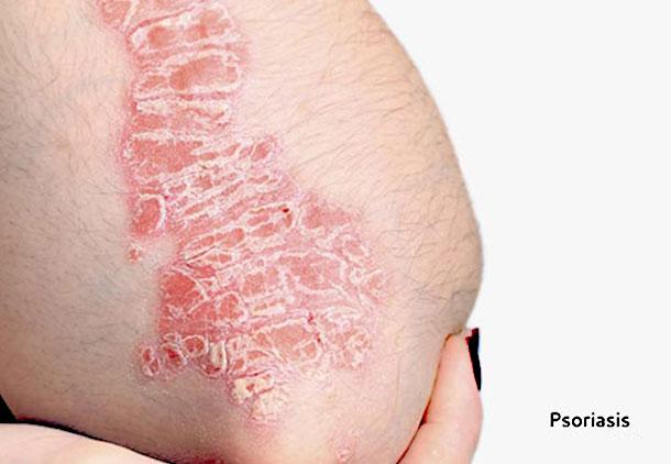 مشکلات پوستی