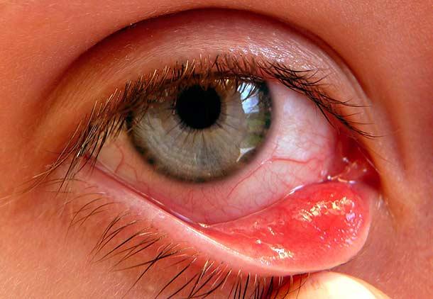 درمان برون چرخش پلک یا اکتروپیون بعد از لیزر