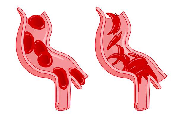 خارج شدن چند قطره خون بعد از ادرار