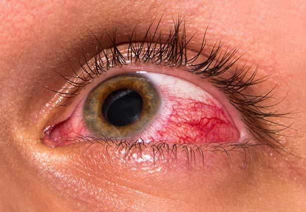 گلوکوم یا آب سیاه چشم در دوران بارداری