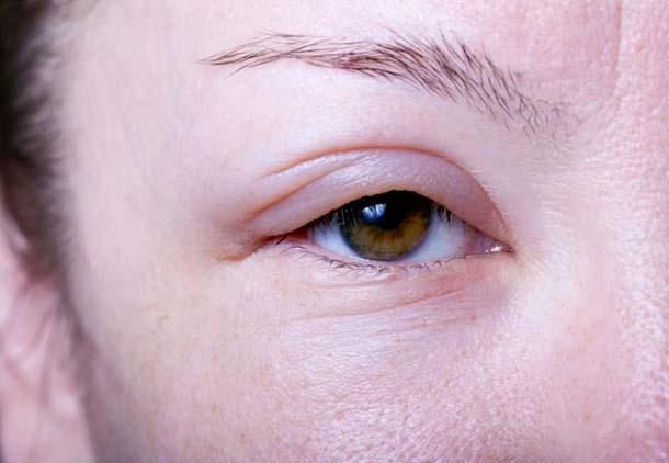 پف کردن چشمها در دوران بارداری