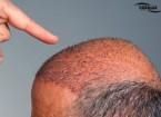 15 نکته برای مراقبت بعد از کاشت مو