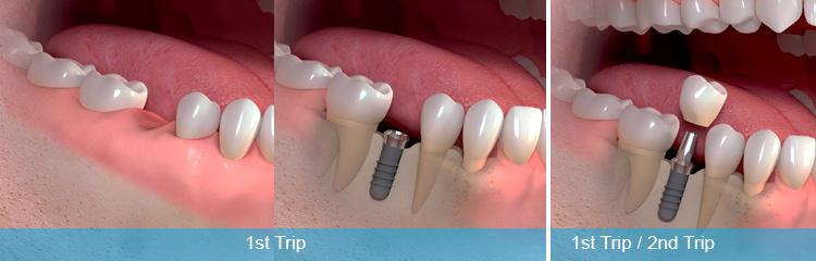 ایمپلنت فوری دندان چگونه انجام میشود؟