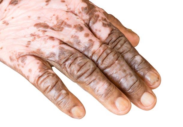 علت بیماری ویتیلیگو
