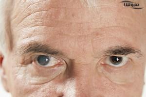 ویتامین E برای درمان آب مروارید
