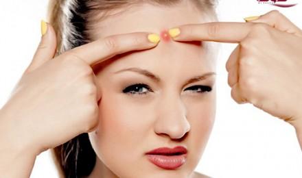 درمان کیست زیر پوست صورت