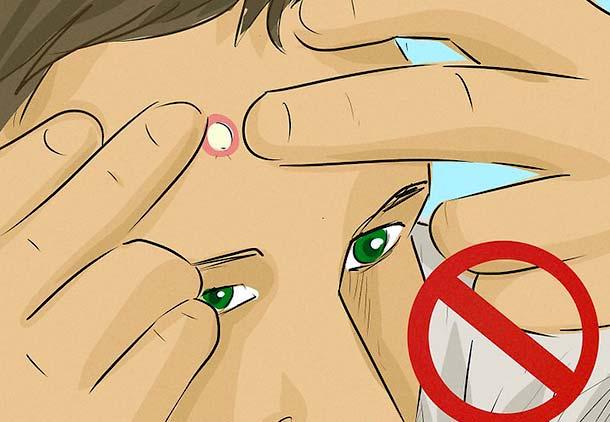فشار دادن کیست زیر پوست صورت