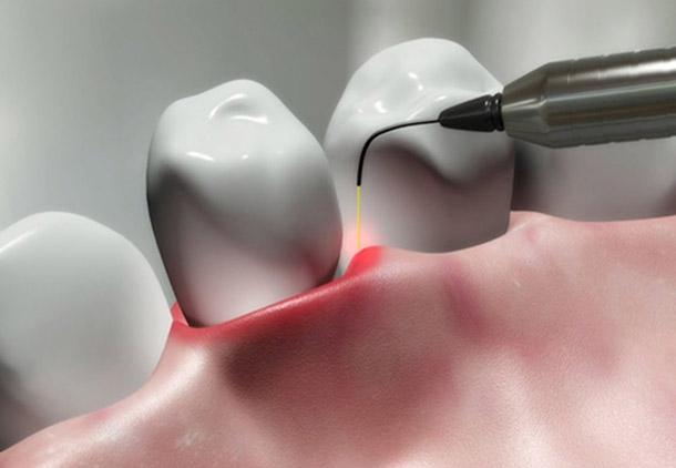 لیزر در دندانپزشکی دیجیتال