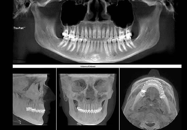 رادیوگرافی دیجیتال دندانپزشکی