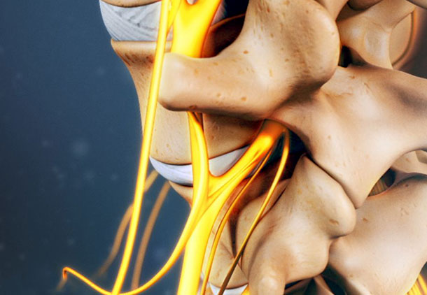 درمان پزشکی عصب سیاتیک