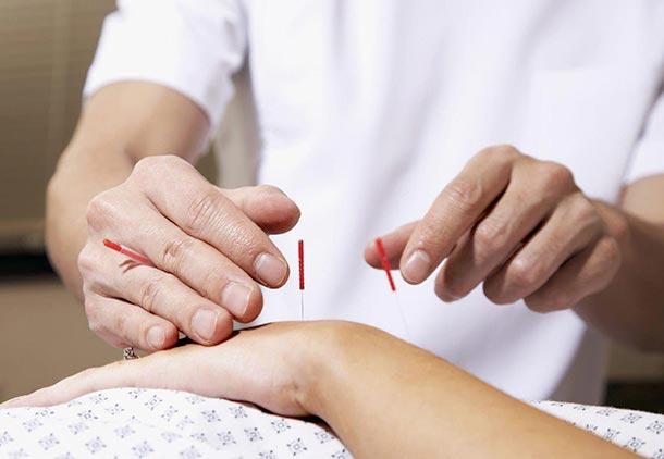 درمان آرتروز گردن و مفاصل با طب سوزنی