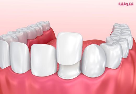 کامپوزیت دندانپزشکی چیست؟