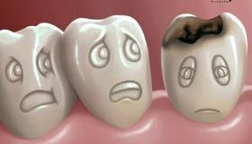 عفونت دندان در بارداری