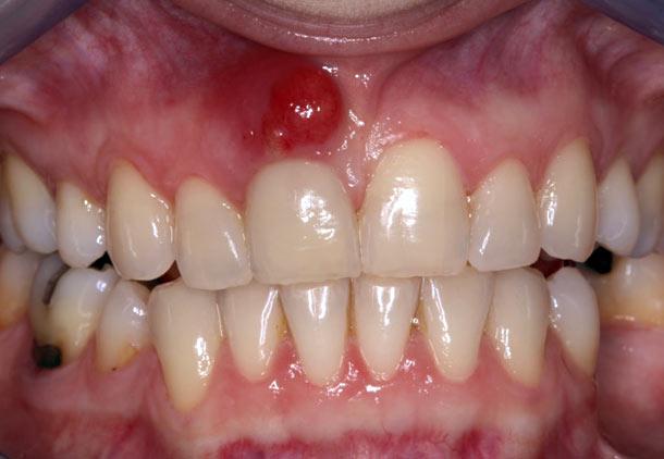 عفونت دندان و گلو درد و مشکلات سینوسی