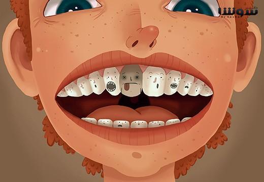 عفونت دندان عصب کشی شده