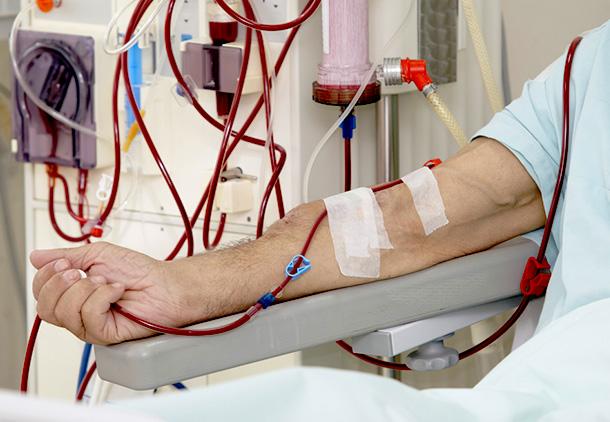 بالا بودن کراتینین خون یعنی باید دیالیز شویم؟