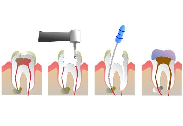عفونت ریشه دندان عصب کشی شده