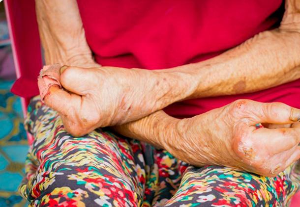 علائم ناشی از فرم پیشرفته بیماری جذام   بیماری هانسن