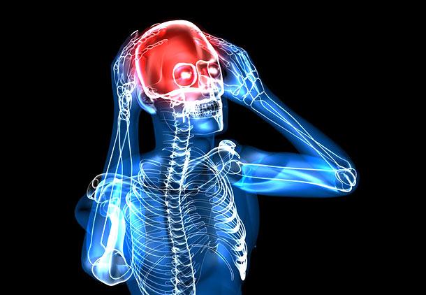 درد پشت سر به دلیل گسترش (متاستاز) سرطان به جمجمه