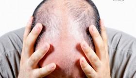 جدیدترین و بهترین روش درمان طاسی مردان اعلام شد
