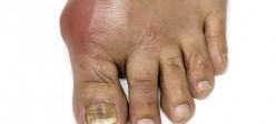 نقرس | ( Gout )