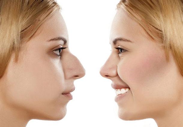 رینوپلاستی / جراحی بینی