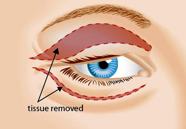 بهبودی بعد از جراحی پلک یا بلفاروپلاستی چقدر طول میکشد؟